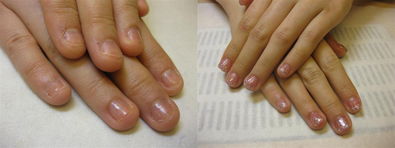 Minor Nail Biter Before Shaping Left And After Lying Soak Off Gel Right