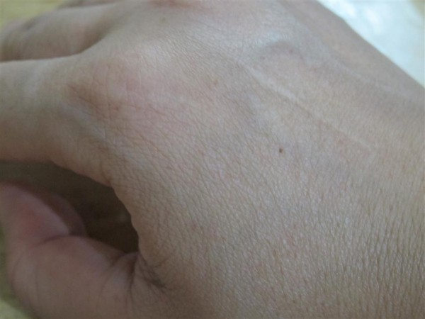 without Heidi's hand serum (Medium)