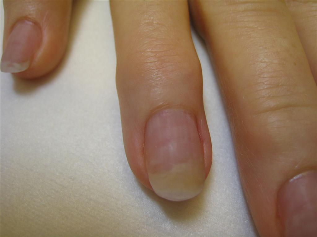Does nail polish cause nail fungus? | Rainbow Nails\' Blog