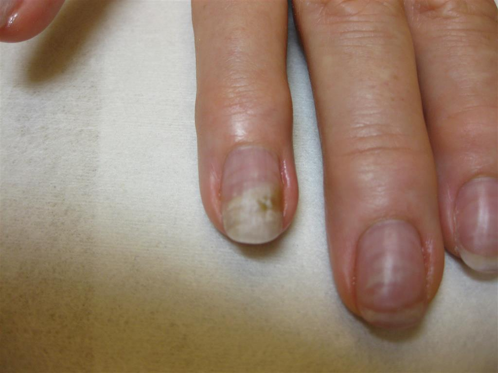 Fungal Nail - How to cure? | Rainbow Nails\' Blog